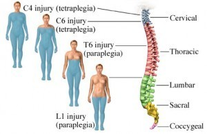 Spinal-Cord-Injury-300x195-300x195